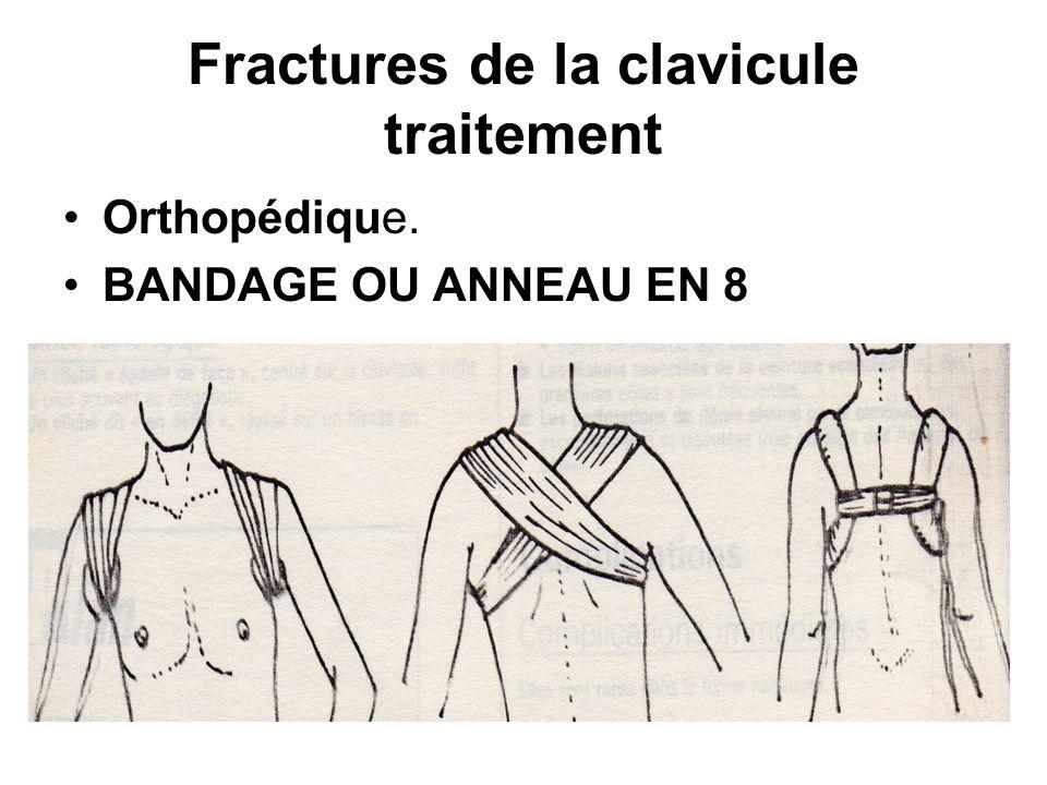 Fractures de la clavicule traitement Orthopédique. BANDAGE OU ANNEAU EN 8