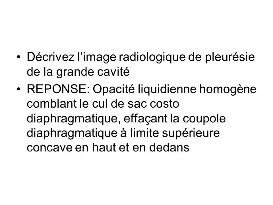 Décrivez limage radiologique de pleurésie de la grande cavité REPONSE: Opacité liquidienne homogène comblant le cul de sac costo diaphragmatique, effa
