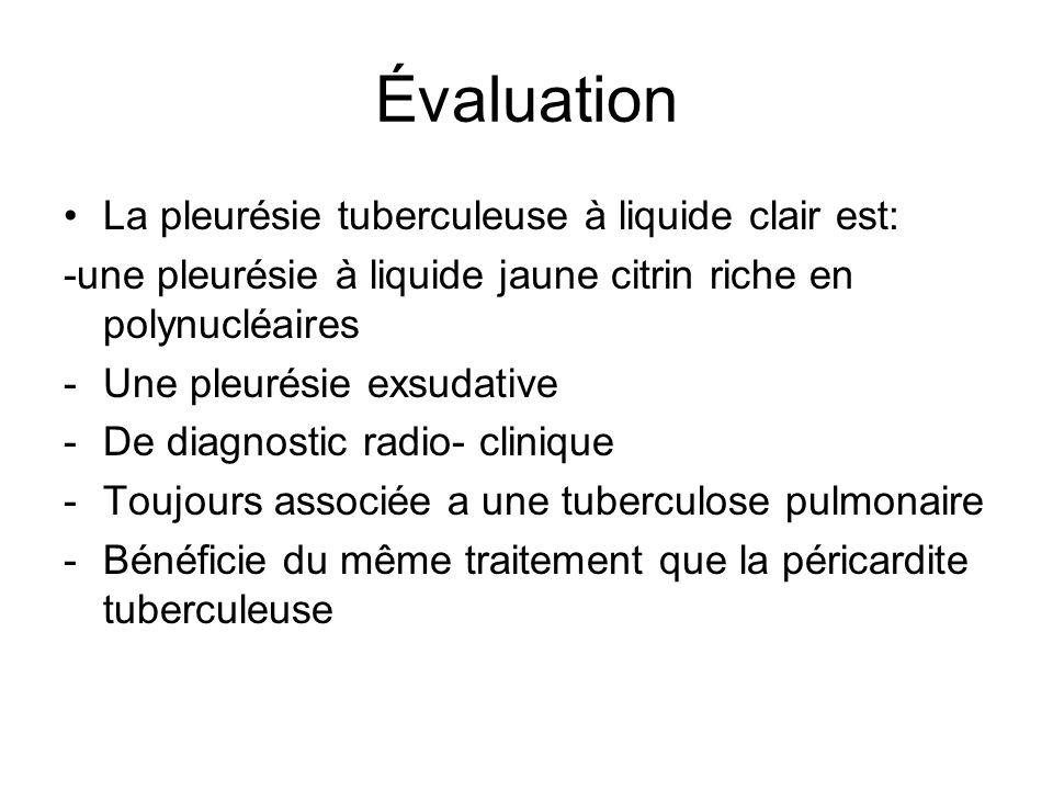 Évaluation La pleurésie tuberculeuse à liquide clair est: -une pleurésie à liquide jaune citrin riche en polynucléaires -Une pleurésie exsudative -De
