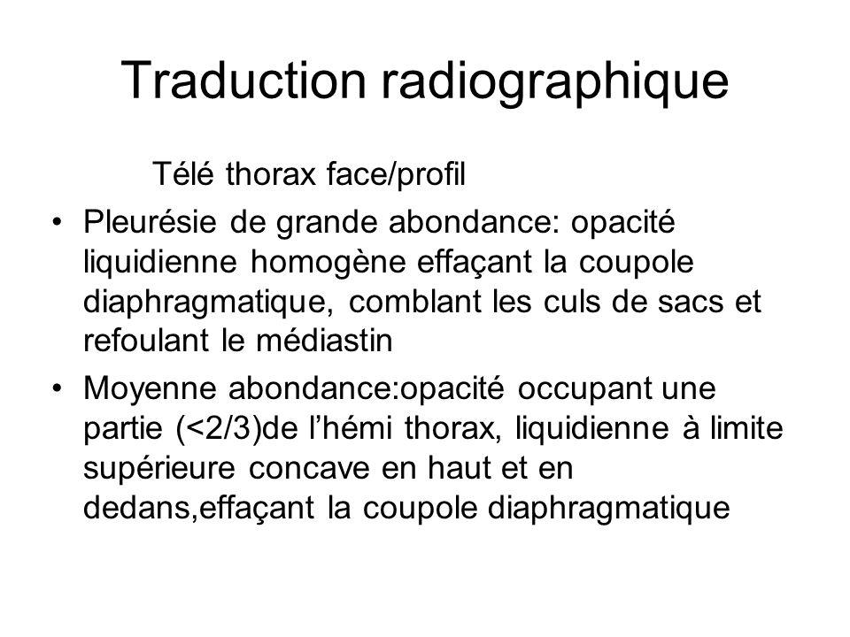 Traduction radiographique Télé thorax face/profil Pleurésie de grande abondance: opacité liquidienne homogène effaçant la coupole diaphragmatique, com