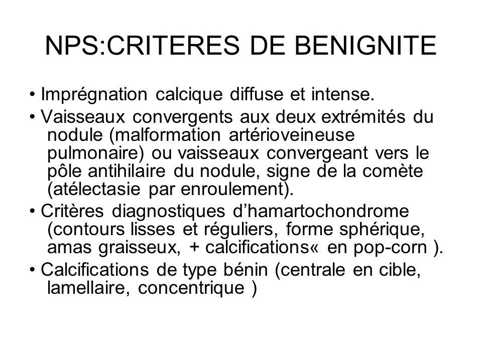 NPS:CRITERES DE BENIGNITE Imprégnation calcique diffuse et intense. Vaisseaux convergents aux deux extrémités du nodule (malformation artérioveineuse