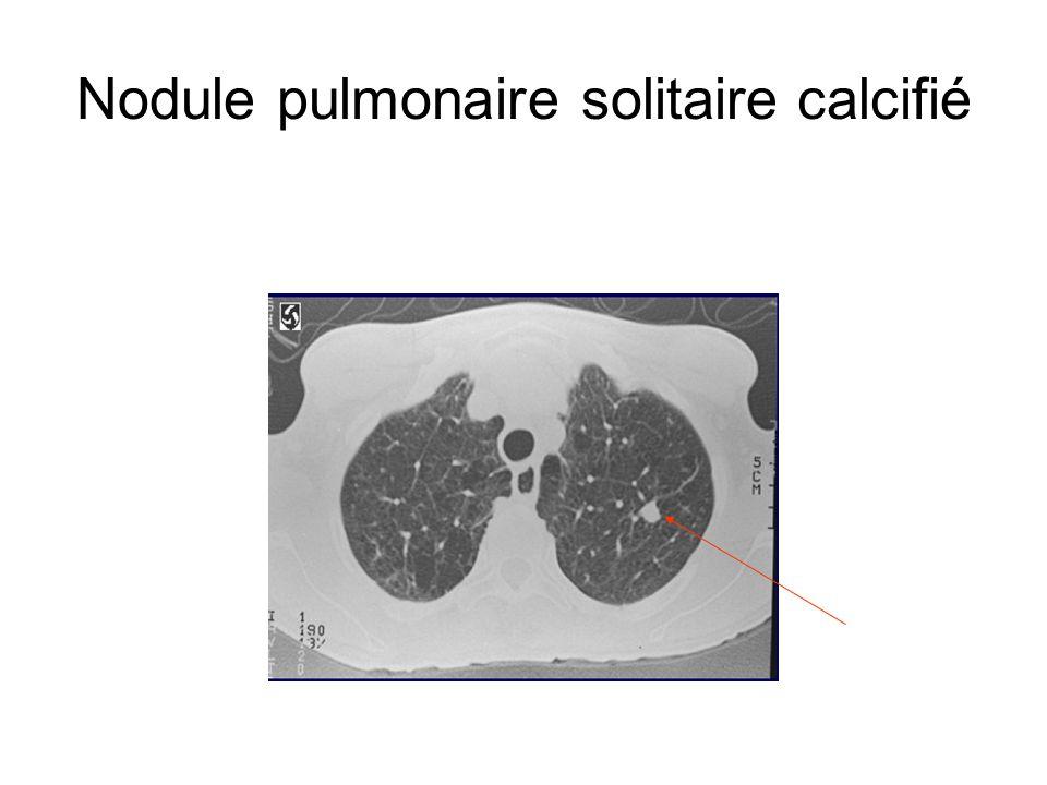 Nodule pulmonaire solitaire calcifié