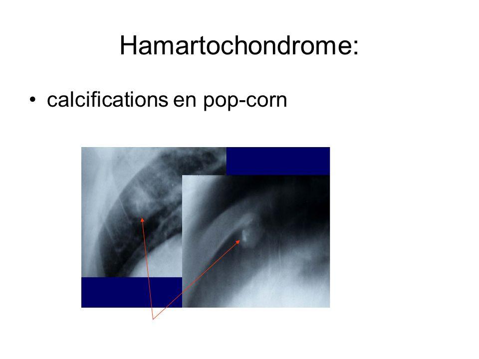 Hamartochondrome: calcifications en pop-corn