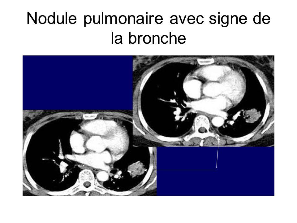 Nodule pulmonaire avec signe de la bronche