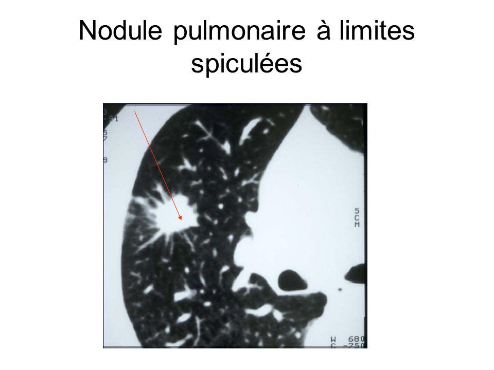 Nodule pulmonaire à limites spiculées