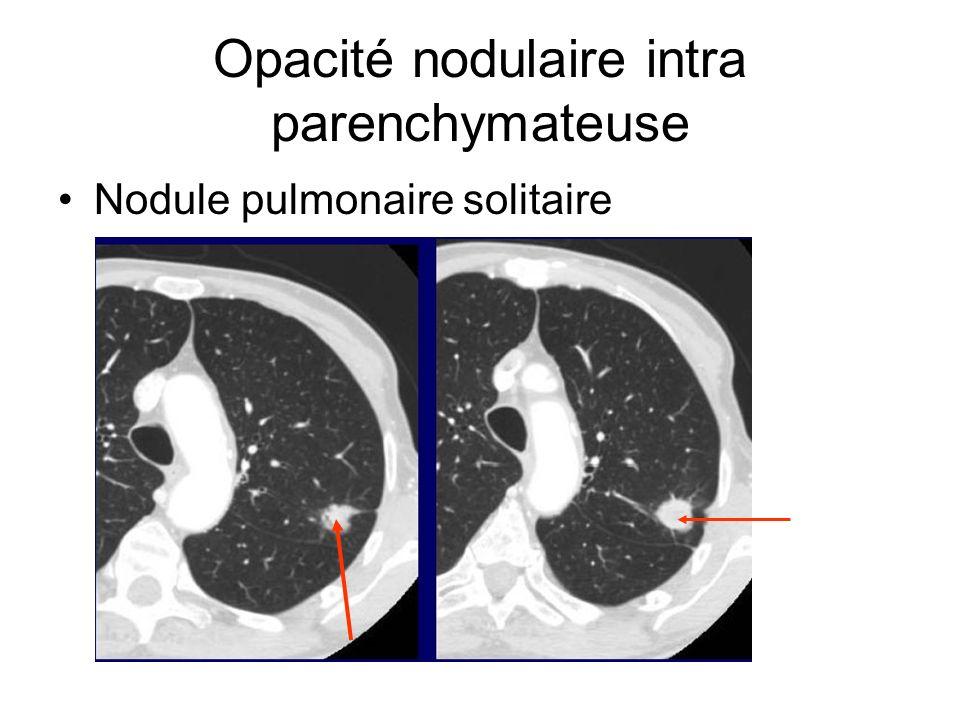 Opacité nodulaire intra parenchymateuse Nodule pulmonaire solitaire