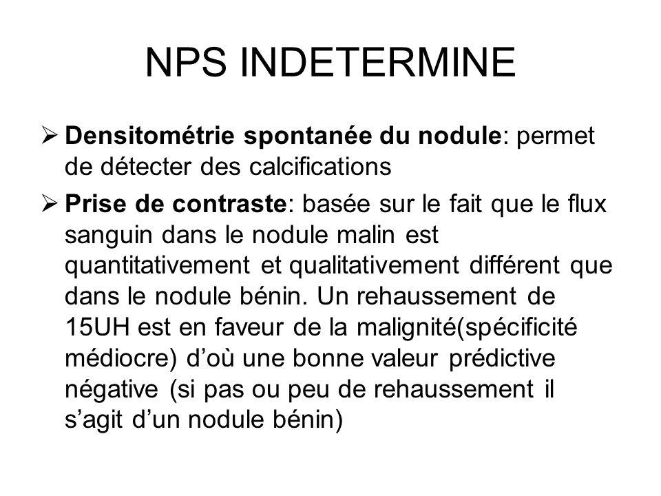 NPS INDETERMINE Densitométrie spontanée du nodule: permet de détecter des calcifications Prise de contraste: basée sur le fait que le flux sanguin dan