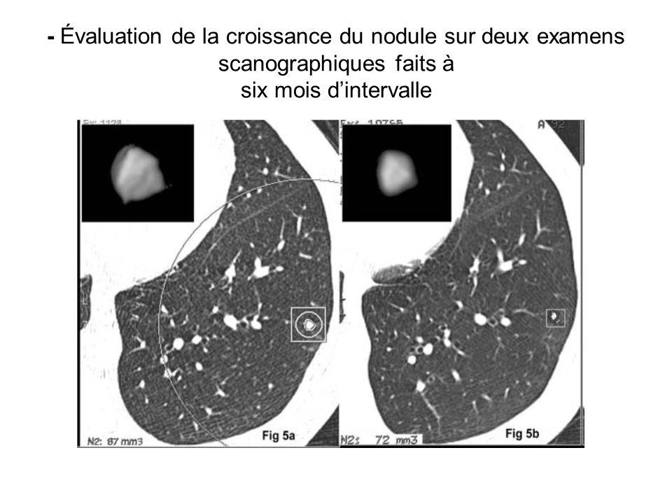 - Évaluation de la croissance du nodule sur deux examens scanographiques faits à six mois dintervalle