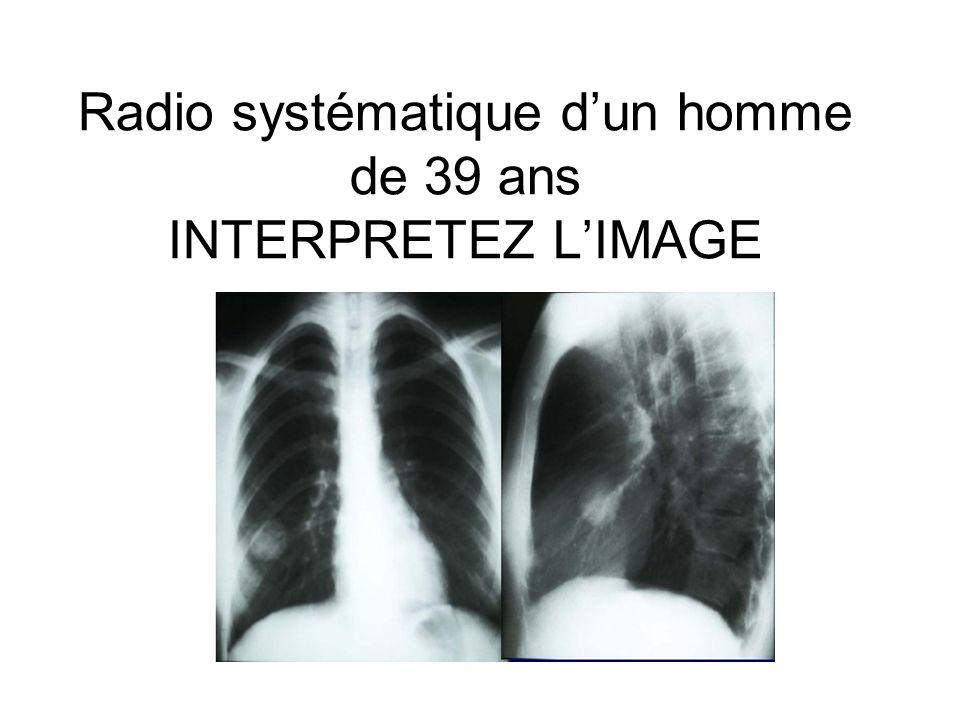 Radio systématique dun homme de 39 ans INTERPRETEZ LIMAGE