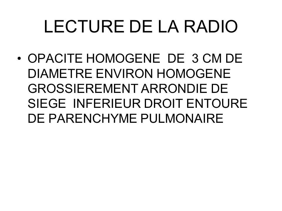 LECTURE DE LA RADIO OPACITE HOMOGENE DE 3 CM DE DIAMETRE ENVIRON HOMOGENE GROSSIEREMENT ARRONDIE DE SIEGE INFERIEUR DROIT ENTOURE DE PARENCHYME PULMON