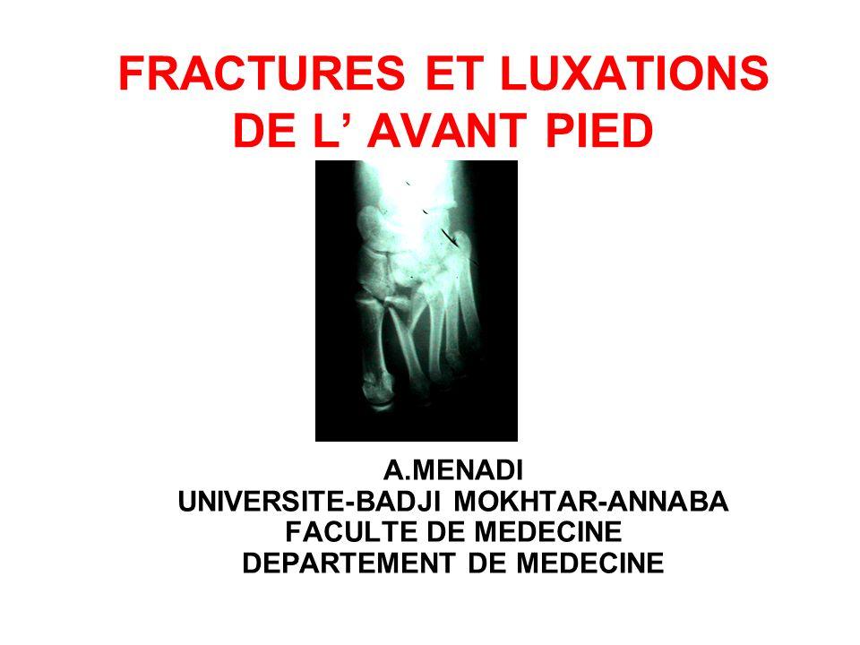 FRACTURES ET LUXATIONS DE L AVANT PIED A.MENADI UNIVERSITE-BADJI MOKHTAR-ANNABA FACULTE DE MEDECINE DEPARTEMENT DE MEDECINE