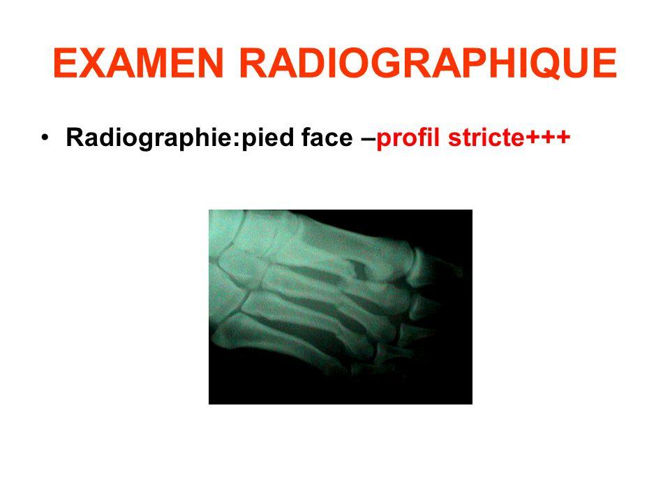 EXAMEN RADIOGRAPHIQUE Radiographie:pied face –profil stricte+++
