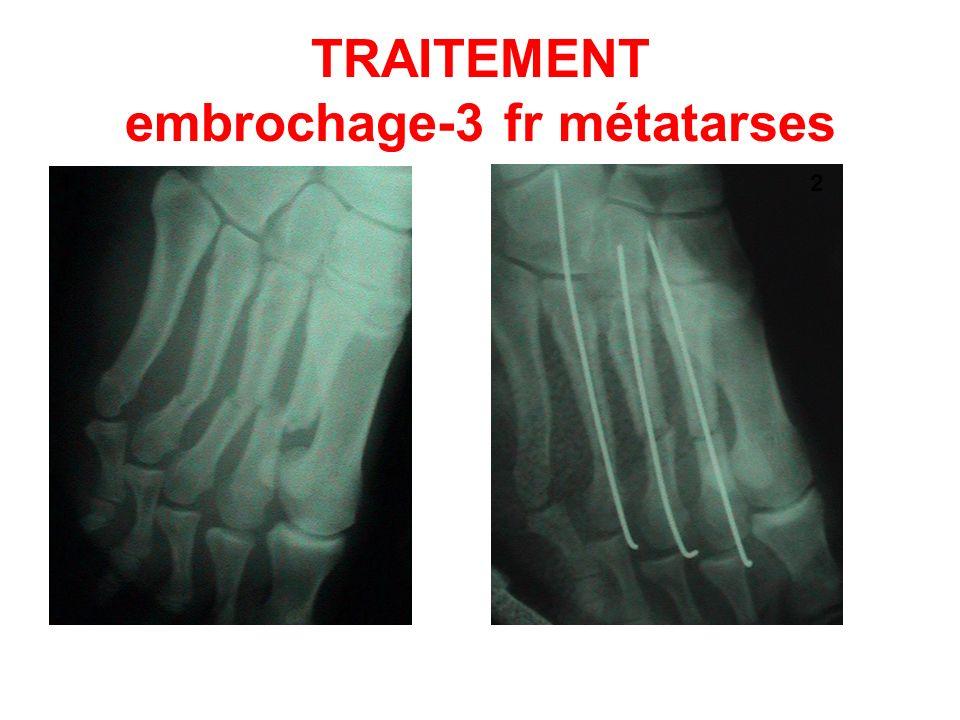 TRAITEMENT embrochage-3 fr métatarses 12