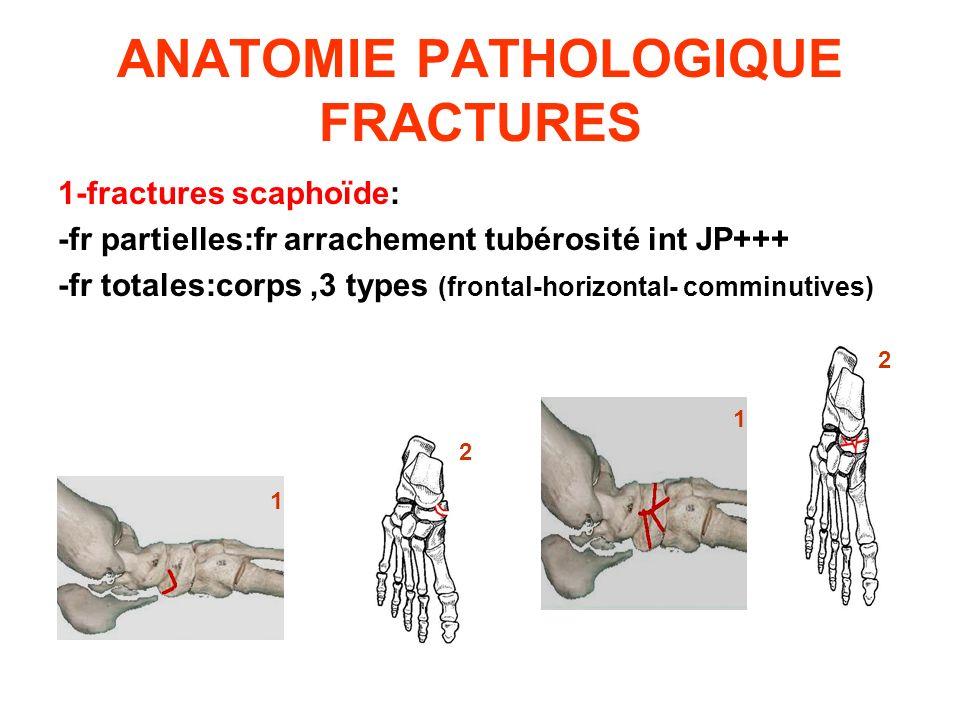 ANATOMIE PATHOLOGIQUE FRACTURES 1-fractures scaphoïde: -fr partielles:fr arrachement tubérosité int JP+++ -fr totales:corps,3 types (frontal-horizonta