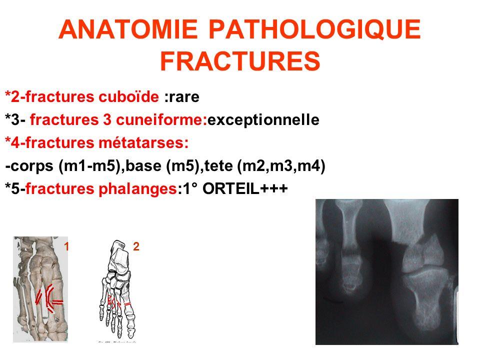 ANATOMIE PATHOLOGIQUE FRACTURES *2-fractures cuboïde :rare *3- fractures 3 cuneiforme:exceptionnelle *4-fractures métatarses: -corps (m1-m5),base (m5)