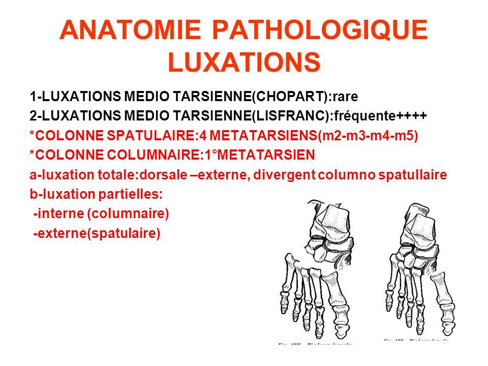 ANATOMIE PATHOLOGIQUE LUXATIONS 1-LUXATIONS MEDIO TARSIENNE(CHOPART):rare 2-LUXATIONS MEDIO TARSIENNE(LISFRANC):fréquente++++ *COLONNE SPATULAIRE:4 ME