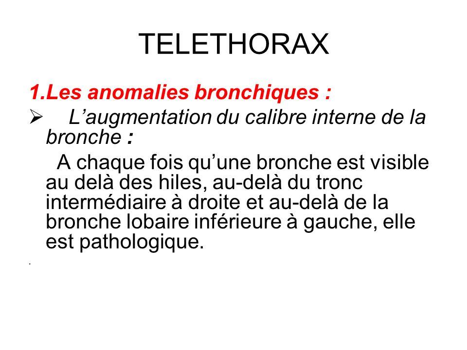 TELETHORAX 1.Les anomalies bronchiques : Laugmentation du calibre interne de la bronche : A chaque fois quune bronche est visible au delà des hiles, a
