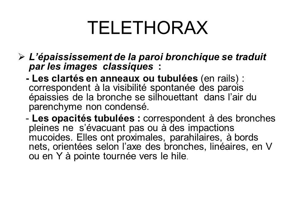 TELETHORAX Lépaississement de la paroi bronchique se traduit par les images classiques : - Les clartés en anneaux ou tubulées (en rails) : corresponde