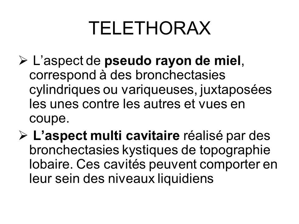 TELETHORAX Laspect de pseudo rayon de miel, correspond à des bronchectasies cylindriques ou variqueuses, juxtaposées les unes contre les autres et vue