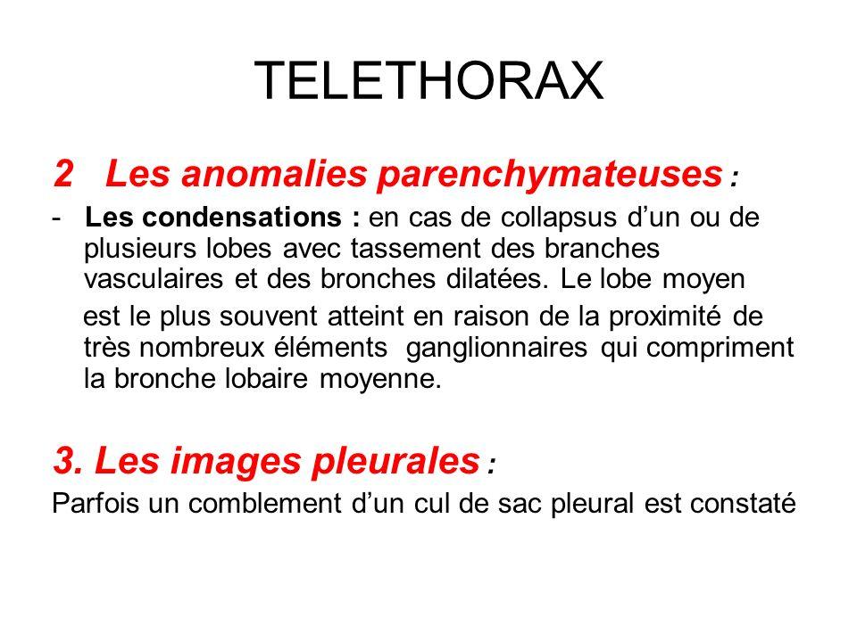 TELETHORAX 2 Les anomalies parenchymateuses : - Les condensations : en cas de collapsus dun ou de plusieurs lobes avec tassement des branches vasculai