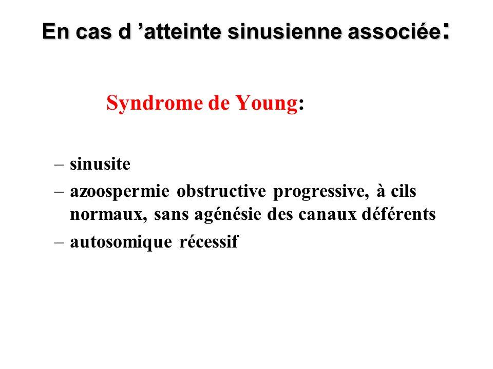 En cas d atteinte sinusienne associée : Syndrome de Young: –sinusite –azoospermie obstructive progressive, à cils normaux, sans agénésie des canaux dé