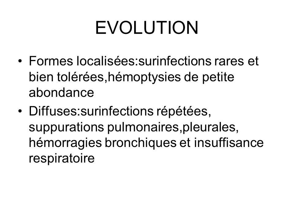 EVOLUTION Formes localisées:surinfections rares et bien tolérées,hémoptysies de petite abondance Diffuses:surinfections répétées, suppurations pulmona
