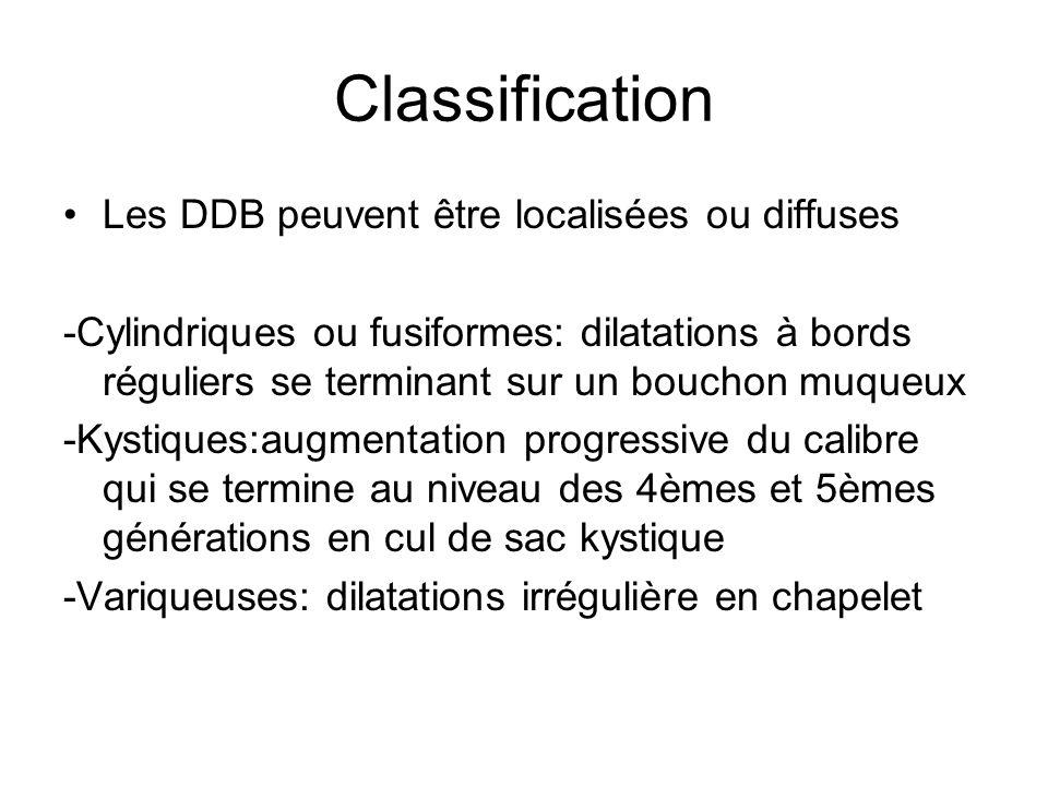 Classification Les DDB peuvent être localisées ou diffuses -Cylindriques ou fusiformes: dilatations à bords réguliers se terminant sur un bouchon muqu