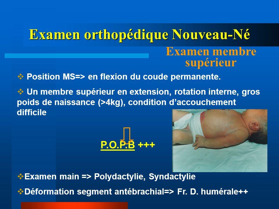 Examen orthopédique Nouveau-Né Examen membre supérieur Position MS=> en flexion du coude permanente. Un membre supérieur en extension, rotation intern