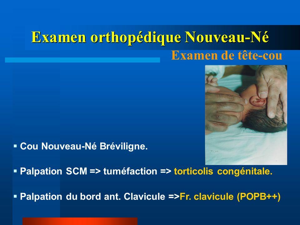 Cou Nouveau-Né Bréviligne. Palpation SCM => tuméfaction => torticolis congénitale. Palpation du bord ant. Clavicule =>Fr. clavicule (POPB++) Examen or
