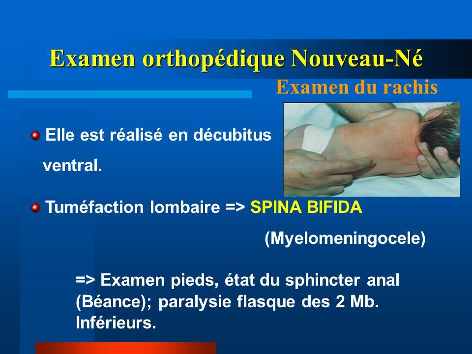 Elle est réalisé en décubitus ventral. Tuméfaction lombaire => SPINA BIFIDA (Myelomeningocele) => Examen pieds, état du sphincter anal (Béance); paral