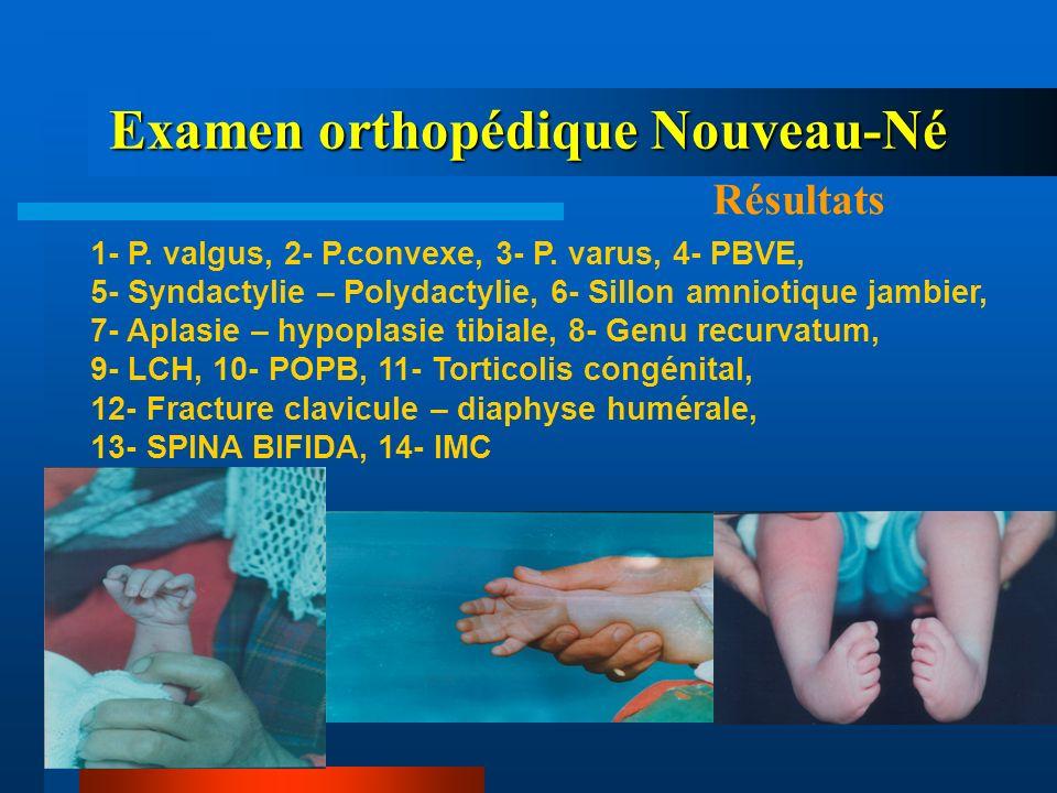 Examen orthopédique Nouveau-Né Résultats 1- P. valgus, 2- P.convexe, 3- P. varus, 4- PBVE, 5- Syndactylie – Polydactylie, 6- Sillon amniotique jambier