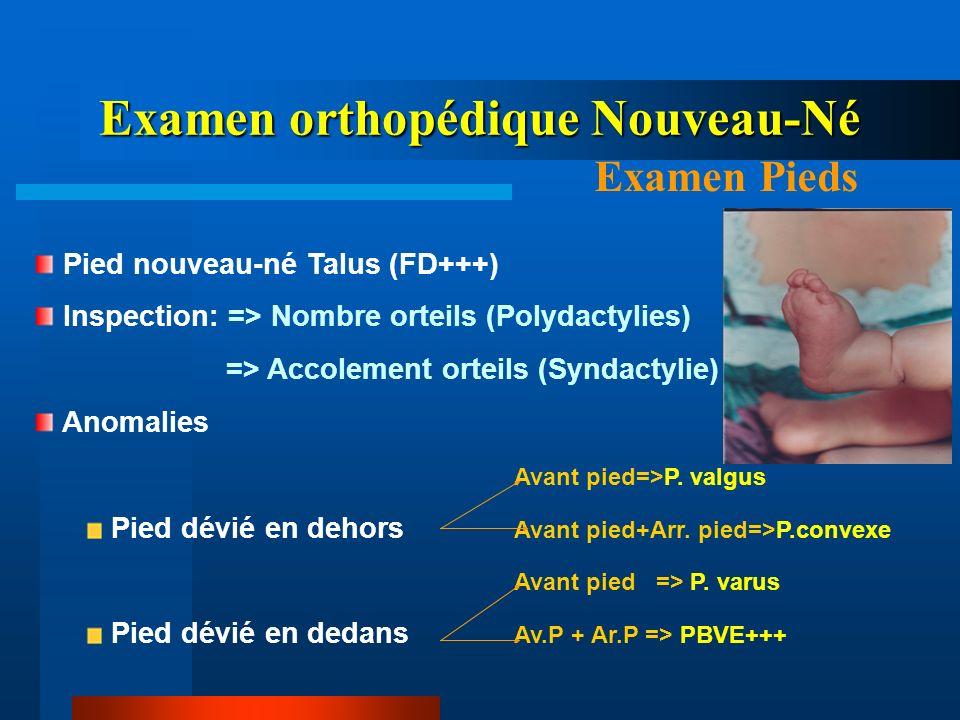 Examen orthopédique Nouveau-Né Examen Pieds Pied nouveau-né Talus (FD+++) Inspection: => Nombre orteils (Polydactylies) => Accolement orteils (Syndact