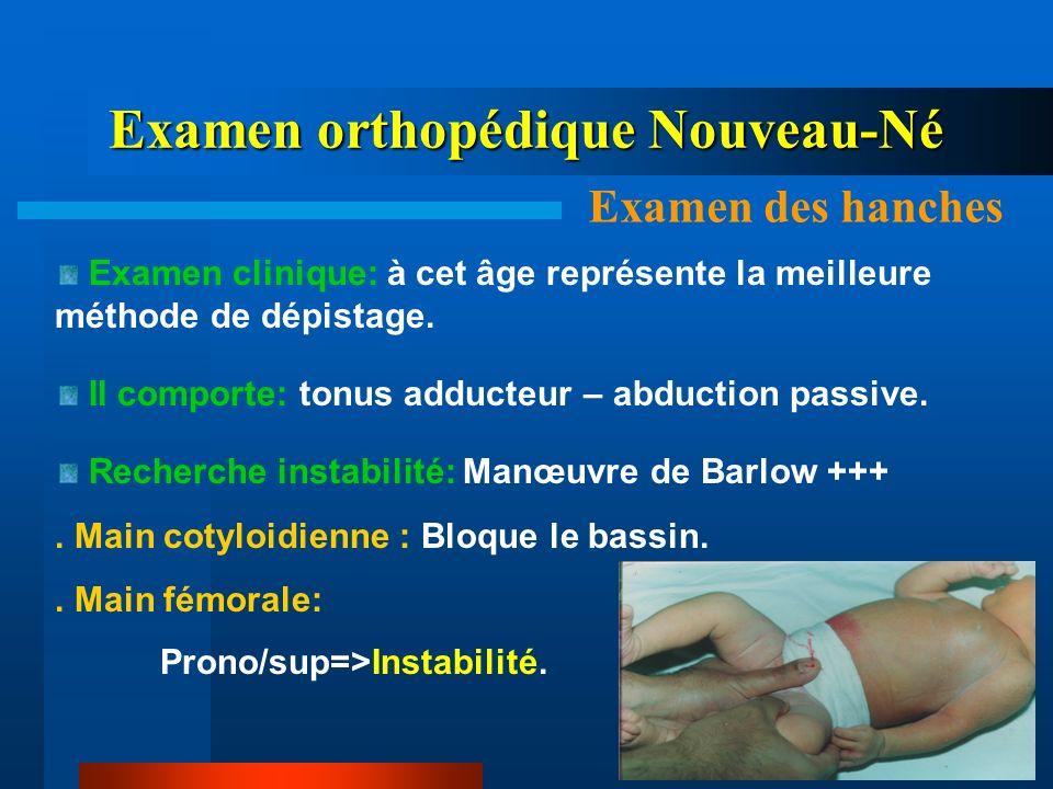 Examen clinique: à cet âge représente la meilleure méthode de dépistage. Il comporte: tonus adducteur – abduction passive. Recherche instabilité: Manœ