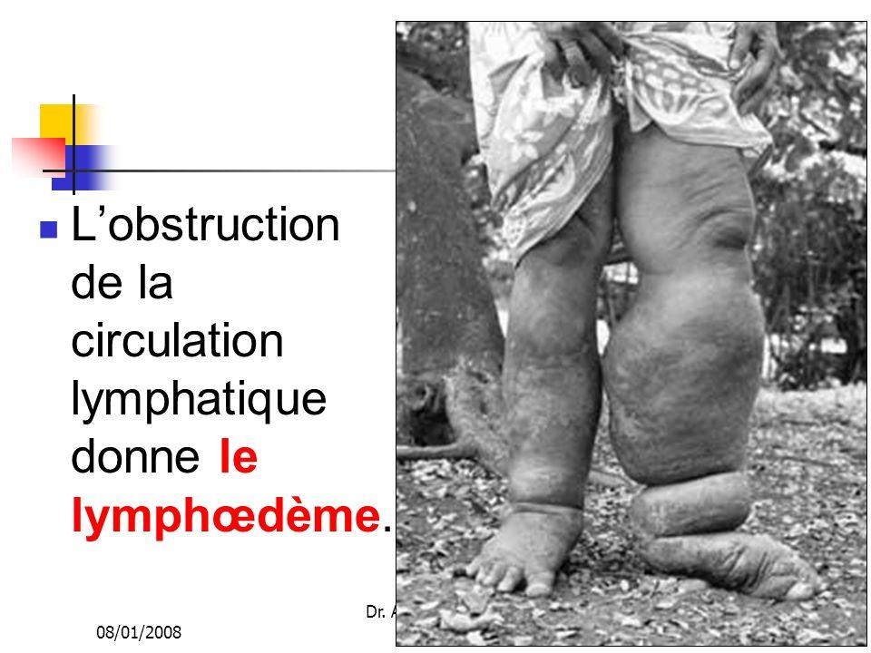 08/01/2008 Dr. ABDALLAH - Appareil circulatoire14 Lobstruction de la circulation lymphatique donne le lymphœdème.