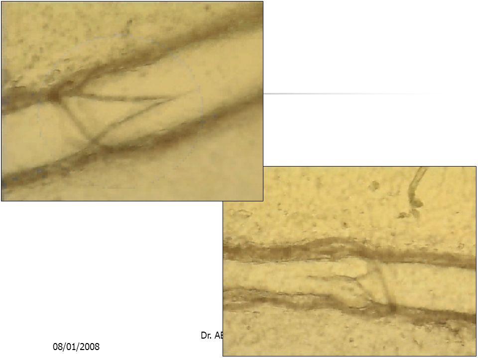 08/01/2008 Dr. ABDALLAH - Appareil circulatoire5
