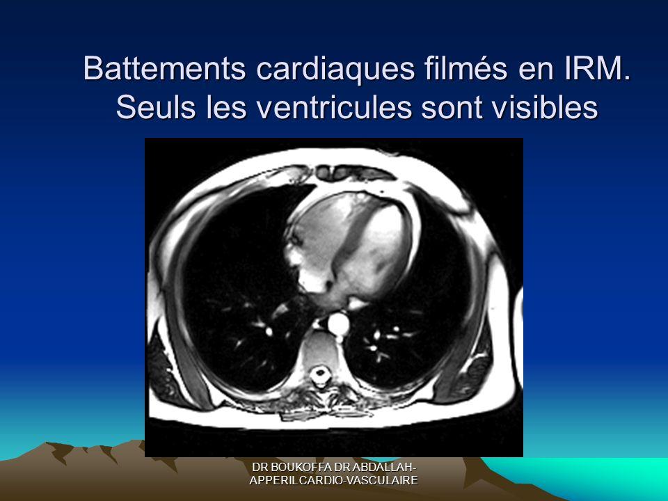 DR BOUKOFFA DR ABDALLAH- APPERIL CARDIO-VASCULAIRE Battements cardiaques filmés en IRM. Seuls les ventricules sont visibles