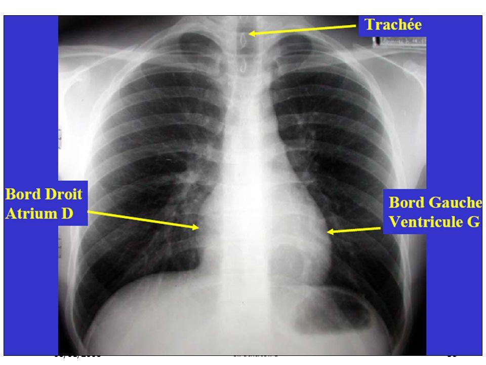 08/01/2008 Dr. ABDALLAH - Appareil circulatoire38