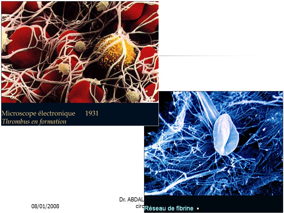 08/01/2008 Dr. ABDALLAH - Appareil circulatoire10