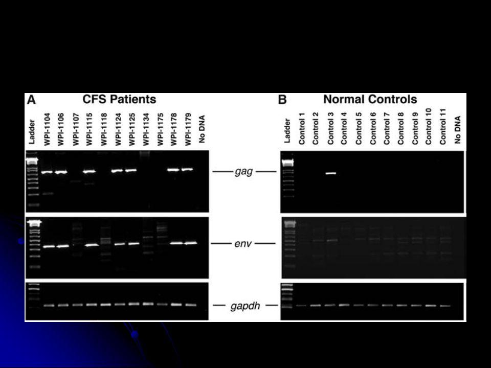 Expression des protéines XMRV .30 échantillons de CSP patients XMRV+.