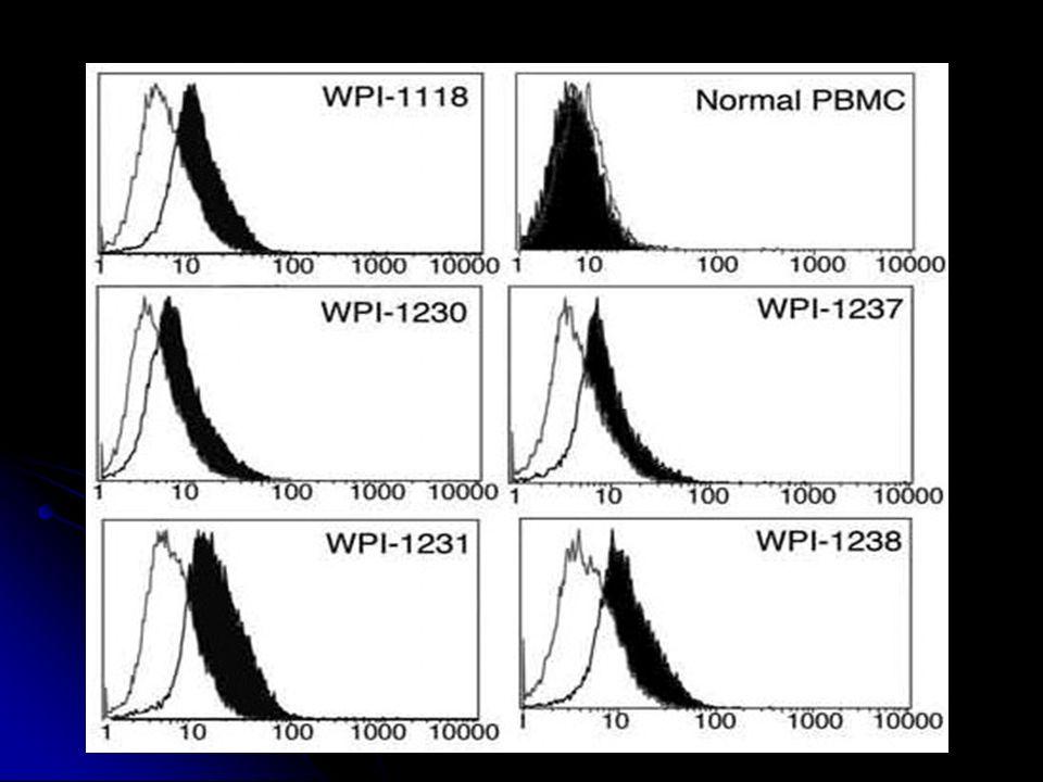 Quels lymphocytes .Isolement des lymphocytes d1 patient SFC+ et XLRV+.