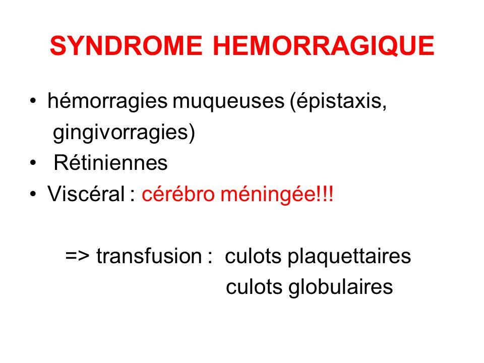 SYNDROME HEMORRAGIQUE hémorragies muqueuses (épistaxis, gingivorragies) Rétiniennes Viscéral : cérébro méningée!!! => transfusion : culots plaquettair