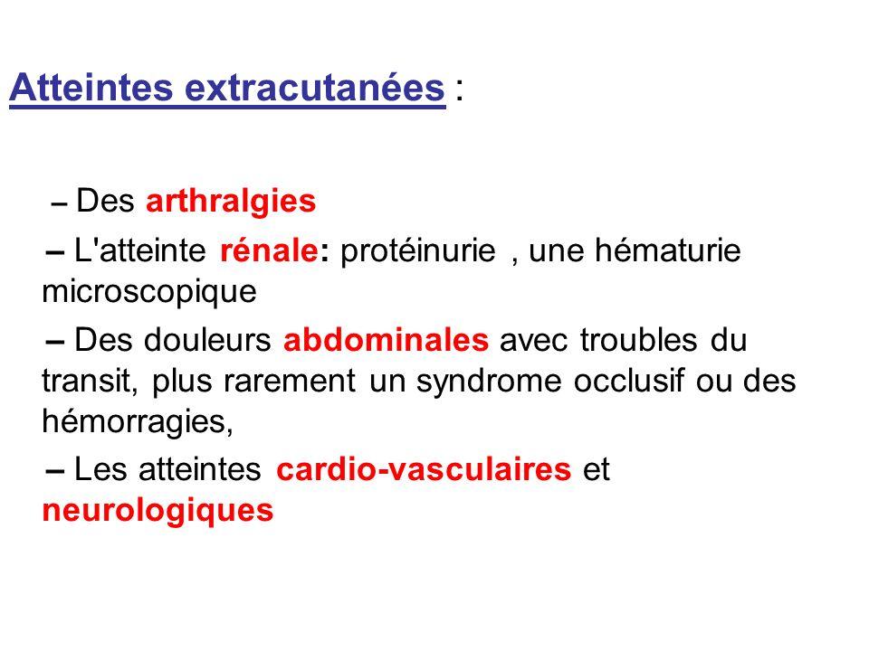 Atteintes extracutanées : – Des arthralgies – L'atteinte rénale: protéinurie, une hématurie microscopique – Des douleurs abdominales avec troubles du