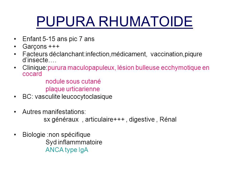 PUPURA RHUMATOIDE Enfant 5-15 ans pic 7 ans Garçons +++ Facteurs déclanchant:infection,médicament, vaccination,piqure dinsecte…. Clinique:purura macul