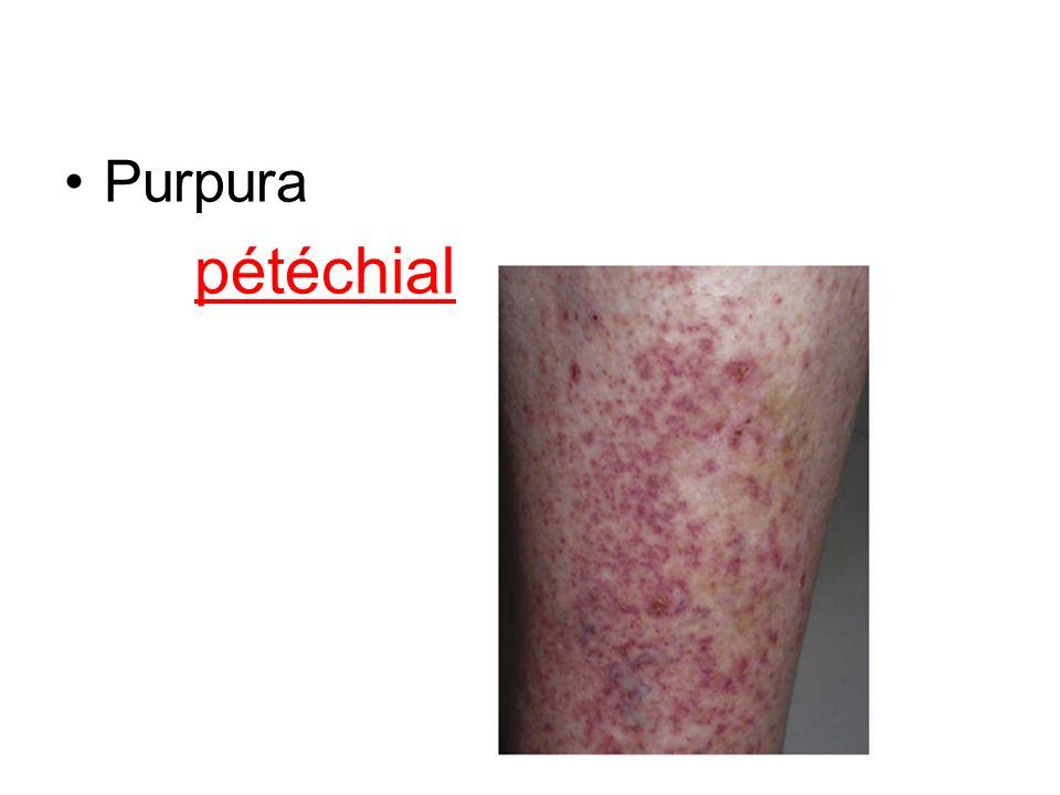 Purpura pétéchial