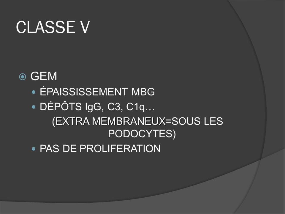 CLASSE V GEM ÉPAISSISSEMENT MBG DÉPÔTS IgG, C3, C1q… EXTRA MEMBRANEUX (EXTRA MEMBRANEUX=SOUS LES PODOCYTES) PAS DE PROLIFERATION