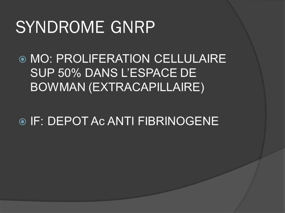LUPUS ET GLOMERULOPATHIE Classe I: néphropathie lupique mésangiale minime (MO normale, IF dépôts immuns mésangiaux) Classe II: NL mésangiale proliférative Classe III: GNMP focale lupique (<50%) Classe IV: GNMP diffuse lupique (>50%) Classe V: GN extramembraneuse lupique Classe VI: NL sclérosée