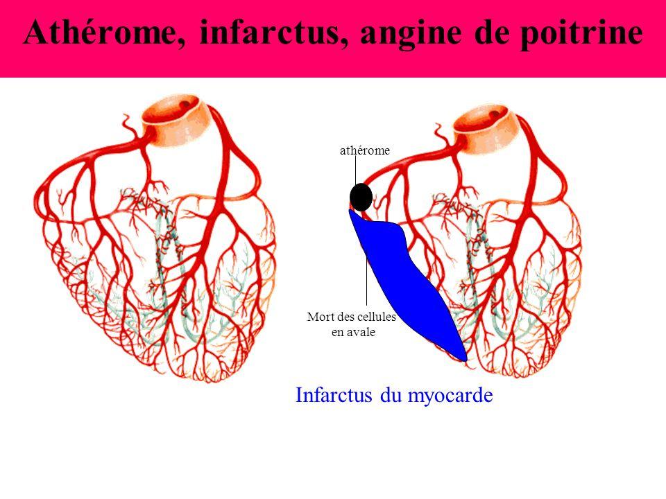 Infarctus du myocarde athérome Mort des cellules en avale