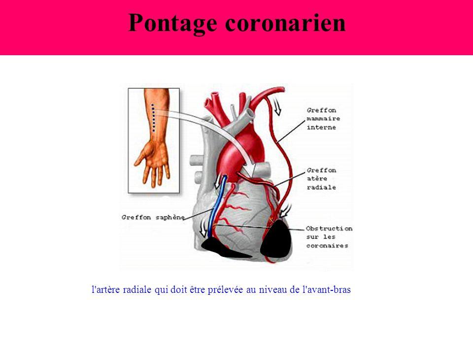 Pontage coronarien l'artère radiale qui doit être prélevée au niveau de l'avant-bras