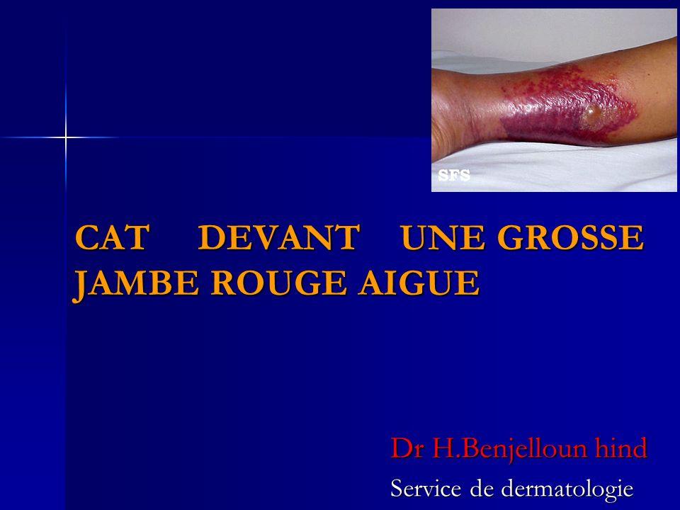 CAT DEVANT UNE GROSSE JAMBE ROUGE AIGUE Dr H.Benjelloun hind Service de dermatologie