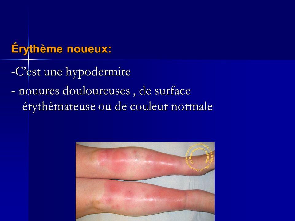 -Cest une hypodermite - nouures douloureuses, de surface érythèmateuse ou de couleur normale Érythème noueux: